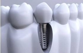 """ITI种植体是什么?1600万患者""""真牙""""安置指南"""