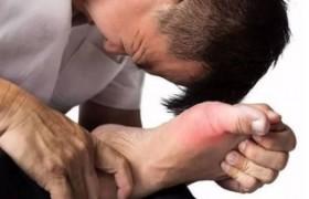 泰斗中医院:日常做好这3件事,或能有效预防痛风