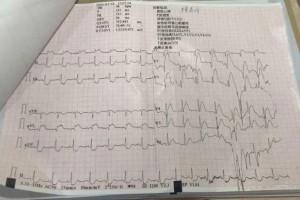任县医院胸痛中心急性心肌梗死患者救治记实