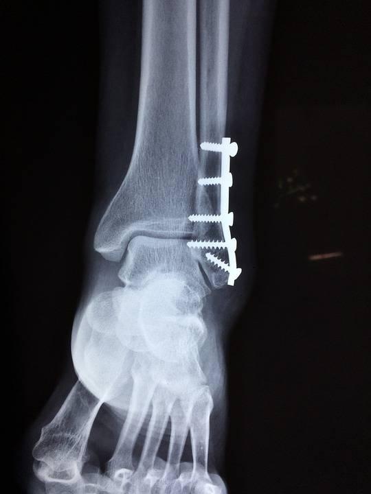 左手舟骨骨折能运动吗舟骨骨折了怎么办