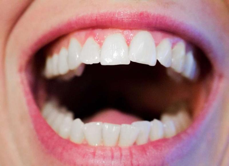 牙套掉了一颗多少钱牙套护理小贴士